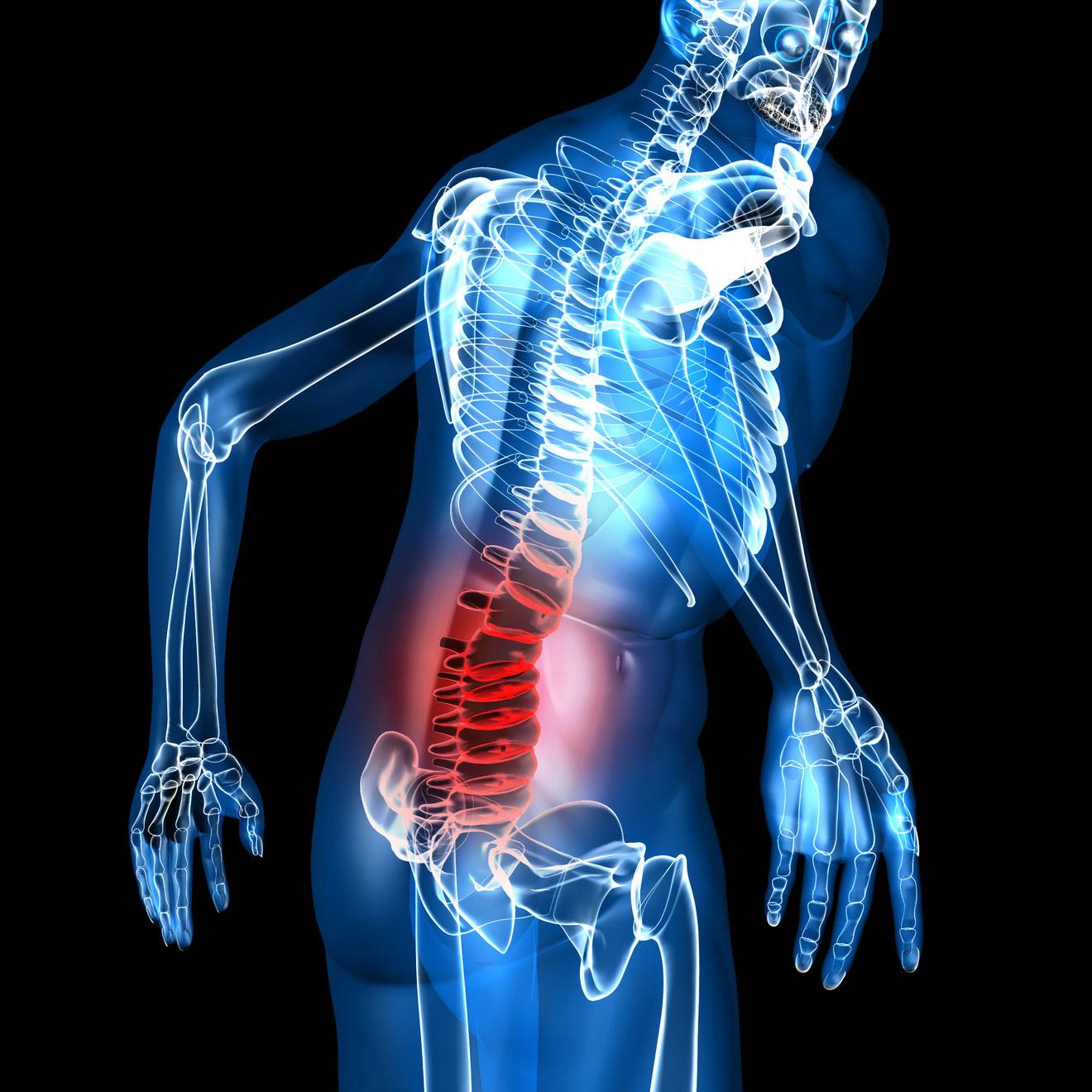 Quelle partie du dos est concernée par un mal de dos musculaire?